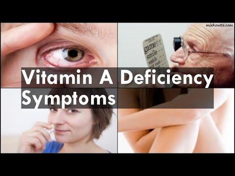 Video Vitamin A Deficiency Symptoms