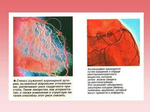 Лечение гипертонии по месник