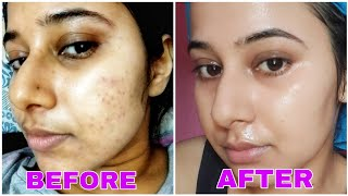 7 Days Challenge - Get Rid of Tiny Bumps on Face Naturally | Simple Home Remedies