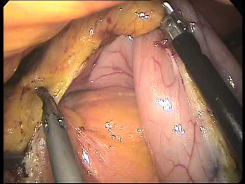 Il video come togliere uno stomaco