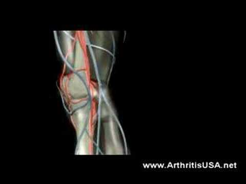 What are the Most common Causes of Knee pain?