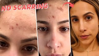 How to: get rid of a pimple FAST & HEAL scabs when you've ANNIHILATED your skin by picking