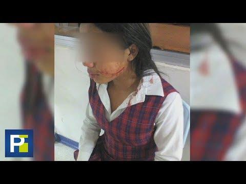 Con un bisturí, una menor le cortó la cara a una compañera de clase en Colombia