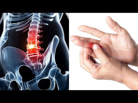Schäden am Meniskus des Knies und Kreuzband