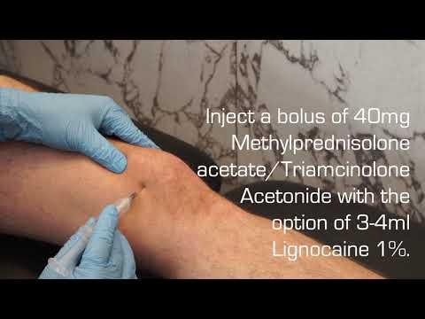 Afectarea cronică a ligamentului cruciat anterior al genunchiului