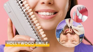 Video Hollywood Smile