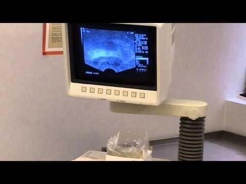 Specjalne urządzenia do masażu prostaty