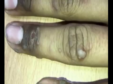 Wart foot bath