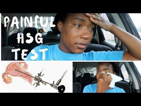 PAINFUL HSG TEST & FIBROID: INFERTILITY JOURNEY