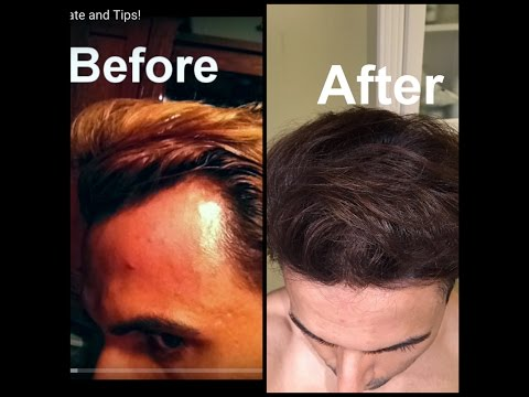 Video Grow Hair on Receding Hairline Naturally! (dermaroller and essential oils)