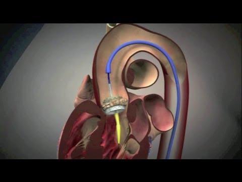 Etapai medicininės reabilitacijos hipertenzijos