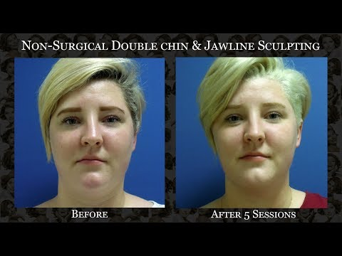 Non-invasive Double Chin & Jawline Sculpting in Dubai