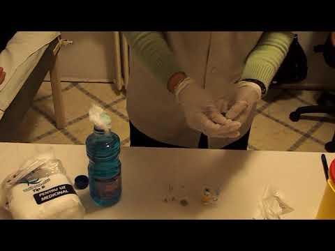 Diagnosticarea unei mici varicoză pelviană
