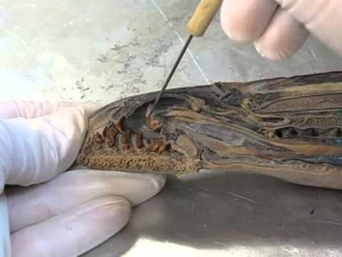 Para sa pag-iwas ng mga adult worm katutubong remedyong