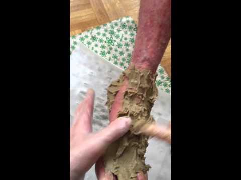 La varicosité cachée les symptômes et le traitement