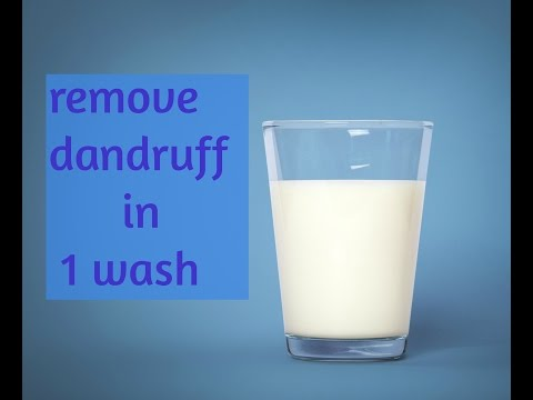 Video How to remove dandruff naturally in 1 wash!!