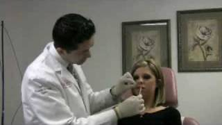 Restylane to lips with topical numbing cream in Fairfax