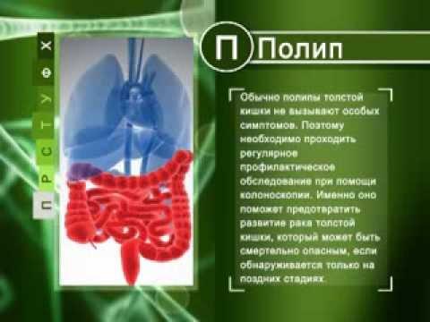 Справочник здоровья Полипы толстого кишечника