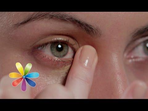 Круги и складки под глазами
