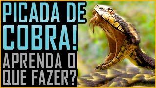 Picada de Cobra - O que Fazer?
