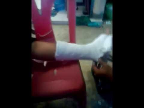 ไม่ว่าจะเป็นไปได้ที่จะรักษากระดูกบนนิ้วเท้าใหญ่