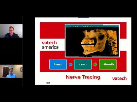 Nerve Tracing