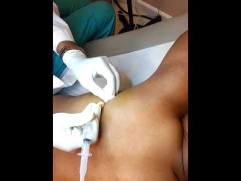 Video tick bite infection treatment