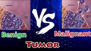 Benign Tumor Vs Malignant Tumor ( Clear Comparison )