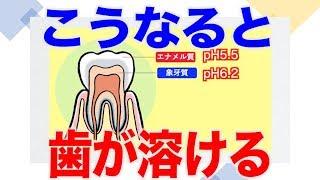 歯が溶け出すポイントは?