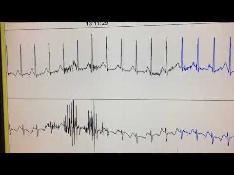 Crisis hipertensiva atracado