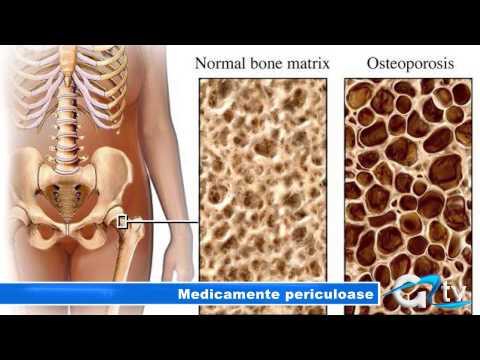 Artroza tratamentului de prim grad al articulației genunchiului
