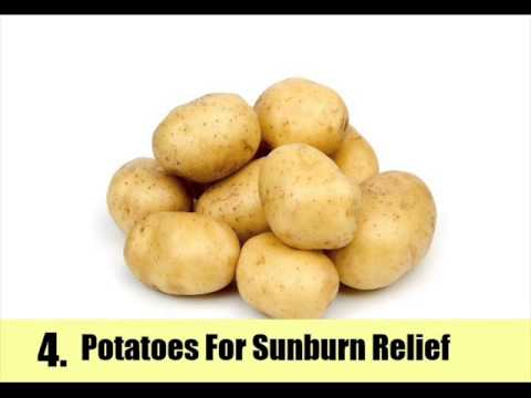 Video Top 10 Home Remedies For Sunburn Relief