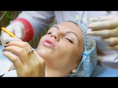 Как очистить пигментации на лице