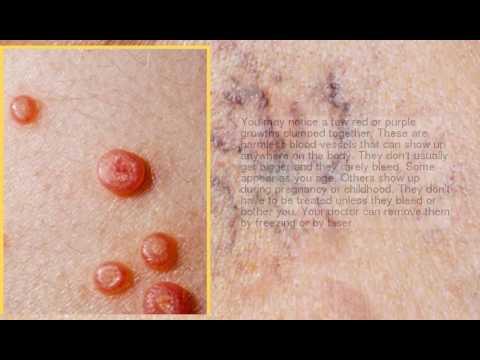 Uterine cancer under 40