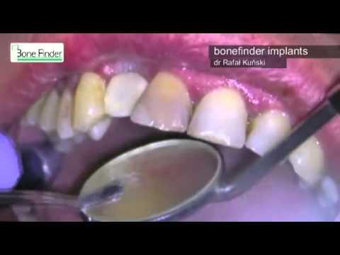 Como más vale poner implant en el pecho