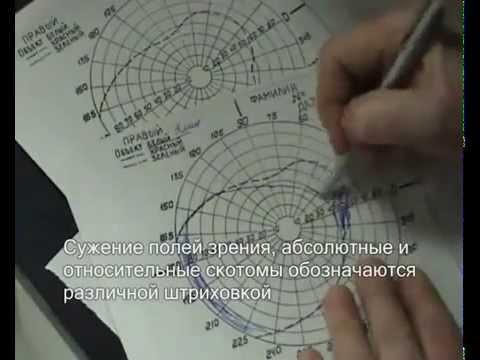 Волгодонск лазерная коррекция зрения