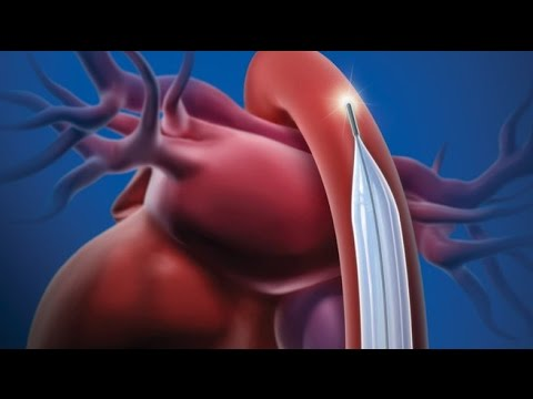 Imans para o tratamento de hipertensão