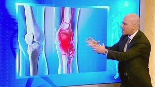 ¡Adiós hinchazón! Aprende cómo combatir la inflamación en el cuerpo