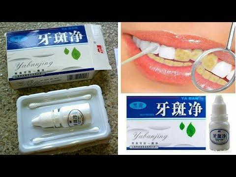 Yabanjing Teeth Whitening Review