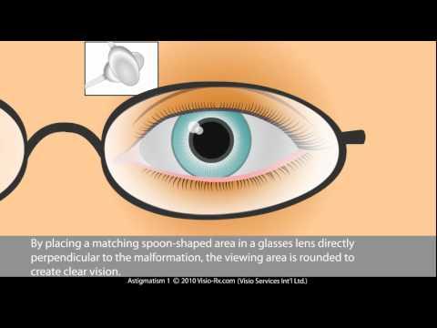 Народное лечение от повышенного глазного давления
