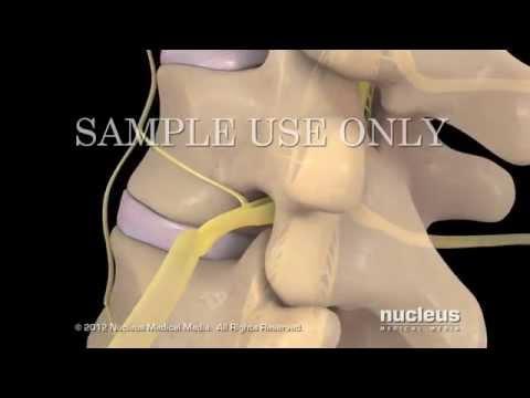 Tratamiento del dolor de la espalda y los hombros