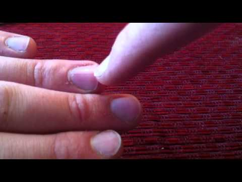 Les moyens nationaux du microorganisme végétal des ongles et les pieds