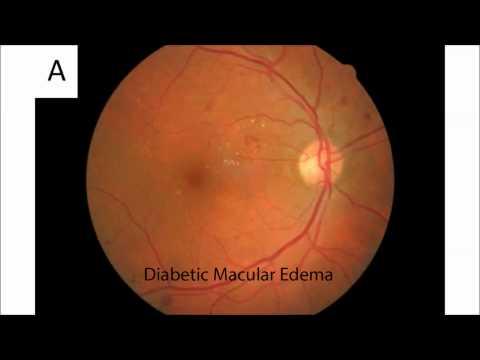 Szenilis látás