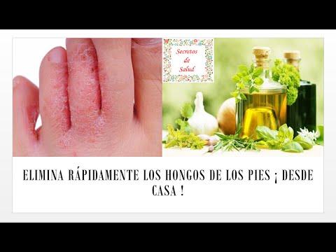 El yodo y el ácido bórico al hongo de las uñas