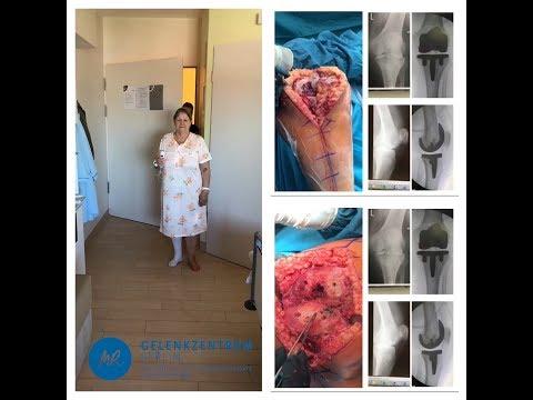 X-ray mit einer Beschreibung der Osteochondrose