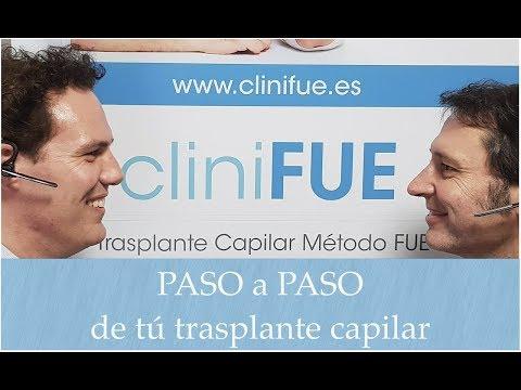 El trasplante capilar cliniFUE