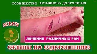Отзыв о применении флуревитов. Восстановление после раны и заражения крови