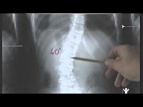 Osteochondrosis pressione arteriosa cervicale
