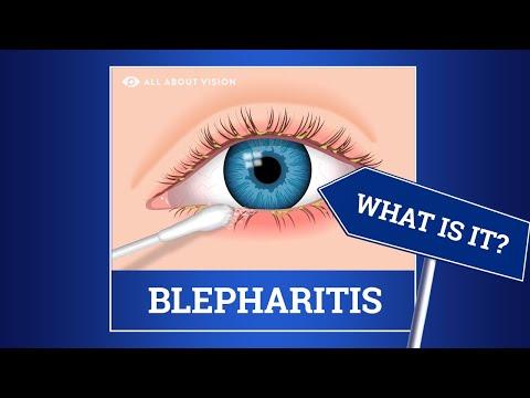 A látás okának hirtelen csökkenése
