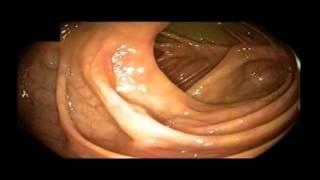 Normal Appendiceal Orifice, Cecum and Ileocecal Valve
